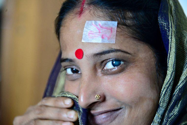 Grauer Star ist heilbar. Frau in Bangladesch